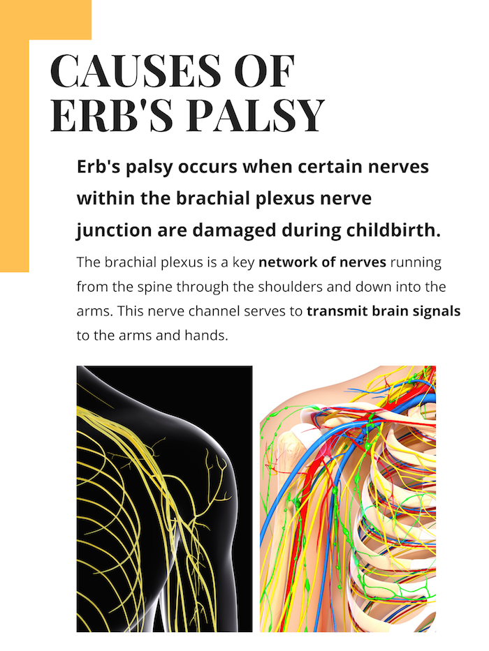 Causes of Erb's Palsy Infographic