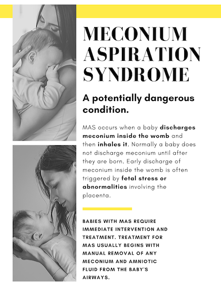 Meconium Aspiration Syndrome Infographic